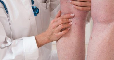 Trombose: Dra. Arabela Possebon alerta para possível aumento da doença durante a quarentena